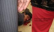 PROCESO. Por los hechos violentos, Ismael Hernández Camacho perdió un ojo y la movilidad del 60 por ciento  de su cuerpo debido a la golpiza recibida por gente de la familia Riovalle Uribe. Foto Archivo/Jorge Villa